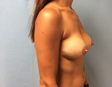 after breast lift and augmentation case 3 right profile view
