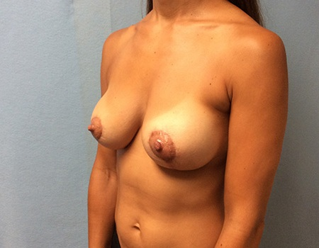after breast lift and augmentation with smooth silicone gel implants case 3 left oblique view