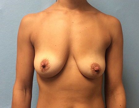 before breast lift and augmentation case 3 front view