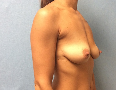 before breast lift and augmentation case 3 right profile view