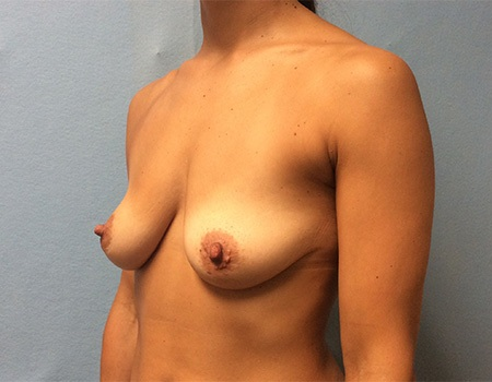 before breast lift and augmentation case 3 left oblique view