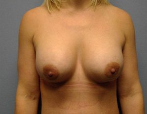 after breast augmentation & tummy tuck Case 2