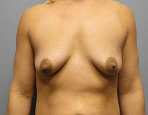 before breast augmentation & tummy tuck Case 2