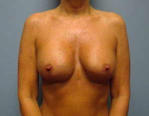 after breast augmentation front view case 1