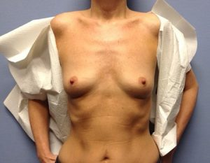 before breast augmentation front view case 1