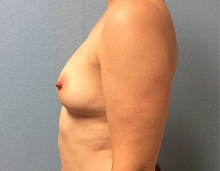 before breast augmentation left profile view Case 5