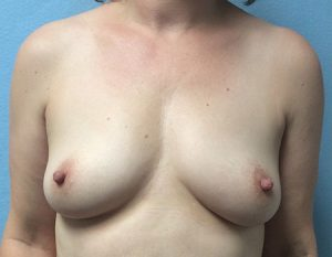 before breast augmentation front view Case 5