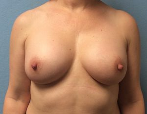 after breast augmentation front view Case 5
