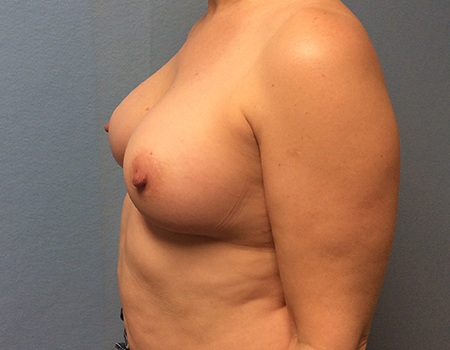 after breast augmentation left profile view Case 5