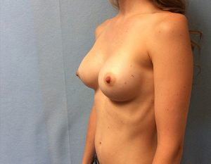 After augmentation with 300 cc Memory Shape High Profile implants