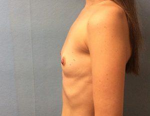 before breast augmentation Case 4 left profile