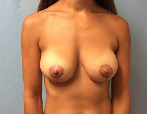 after breast lift and augmentation with silicone gel case 3 front view