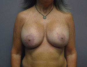 after breast augmentation with revision case 1 front view