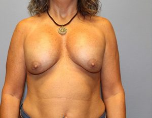 before breast augmentation with revision case 1 front view