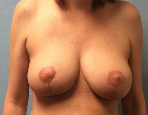 after breast reduction Case 1 front view
