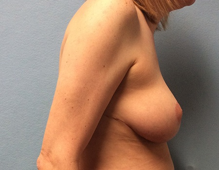 after breast reduction Case 1 right profile view