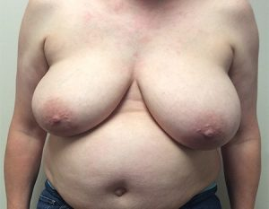 before breast reduction Case 1 front view