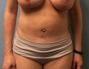 after tummy tuck Case 3 front view