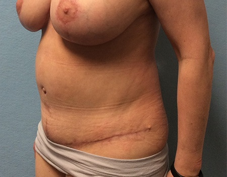 after tummy tuck Case 3 left profile view