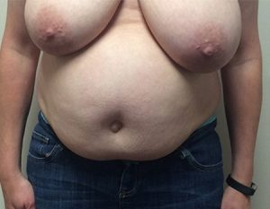before tummy tuck Case 3 front view