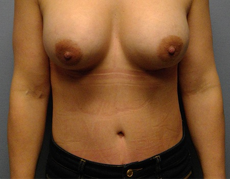 after abdominoplasty tummy tuck case 2