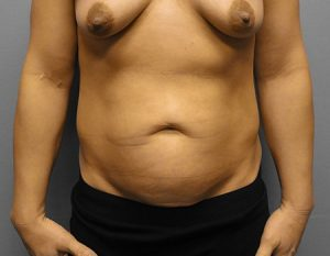 before abdominoplasty tummy tuck case 2