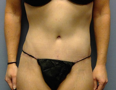 after tummy tuck case 1 front view