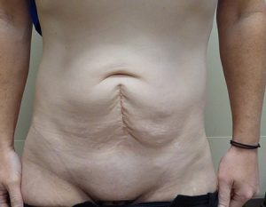 before tummy tuck case 1 front view